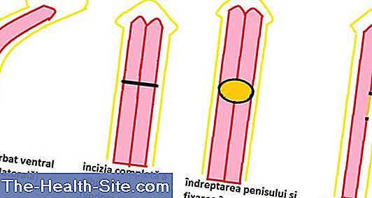 despre dimensiunea penisului