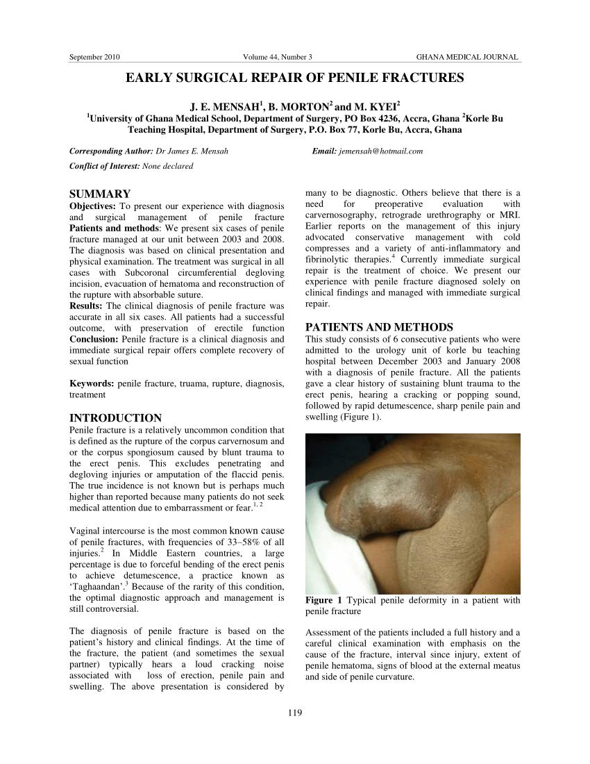 pulsație în penis clasificarea penisurilor masculine