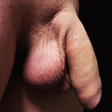 ce să faci dacă arde penisul