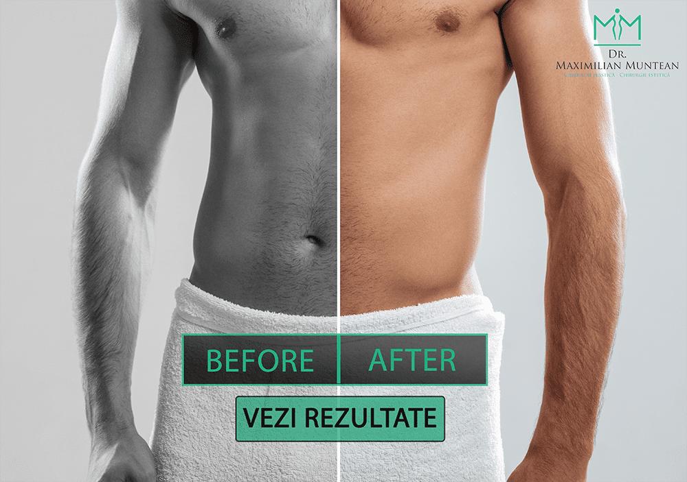 Chirurgie intimă, masculină și feminină - Estetis Clinic