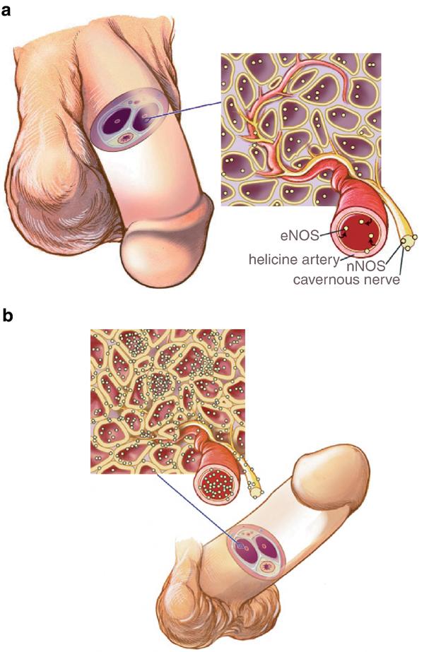 erecția este în permanență în picioare îmbunătățirea erecției și potenței