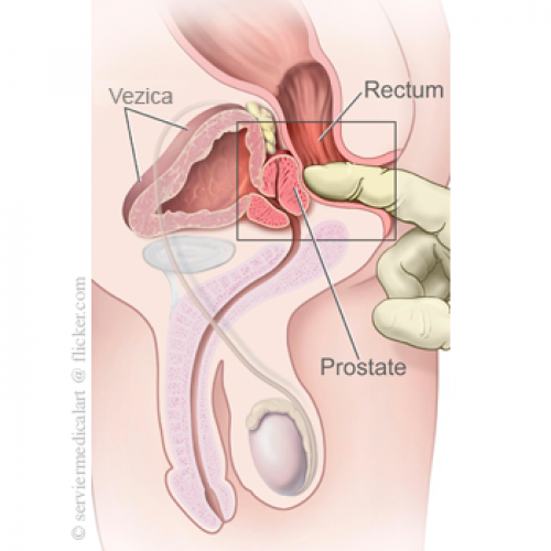 erecție în tratamentul prostatitei cronice