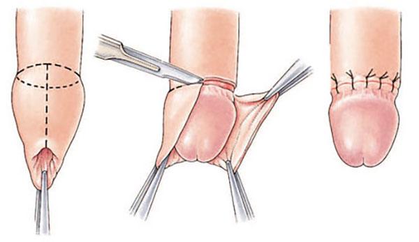organul genital masculin înainte și după erecție