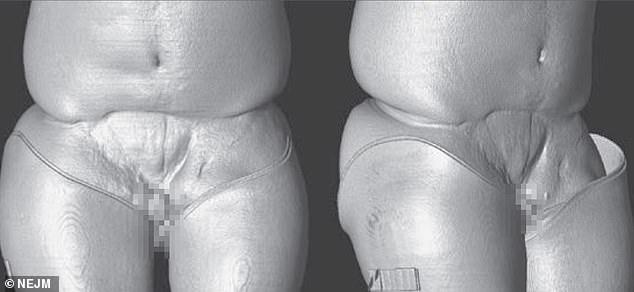 penis transplantat cum să mărești penisul în două săptămâni