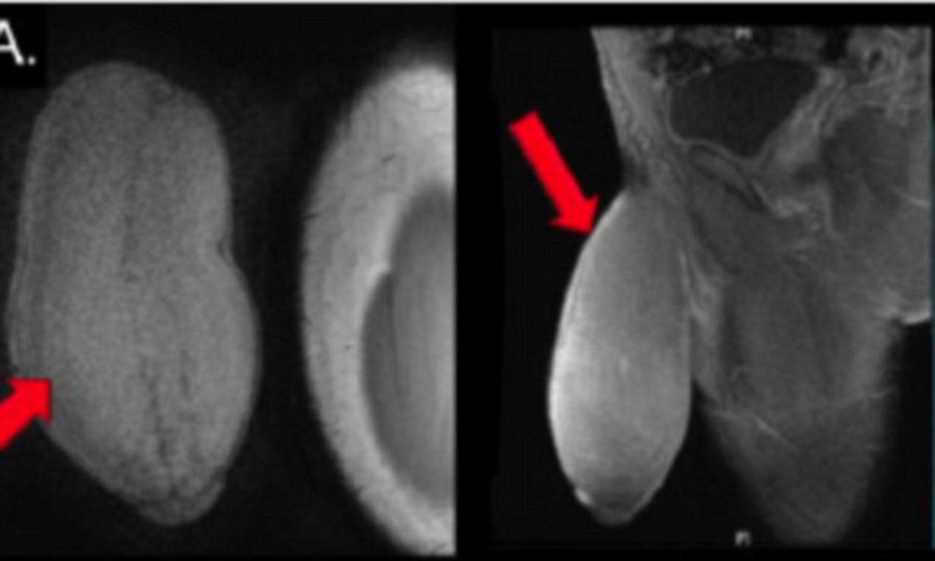 problema erecției omului erecție slabă după tratament