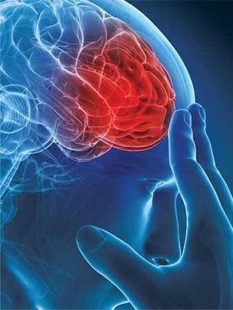 fără erecție după accident vascular cerebral cum să recunoaștem o erecție slabă
