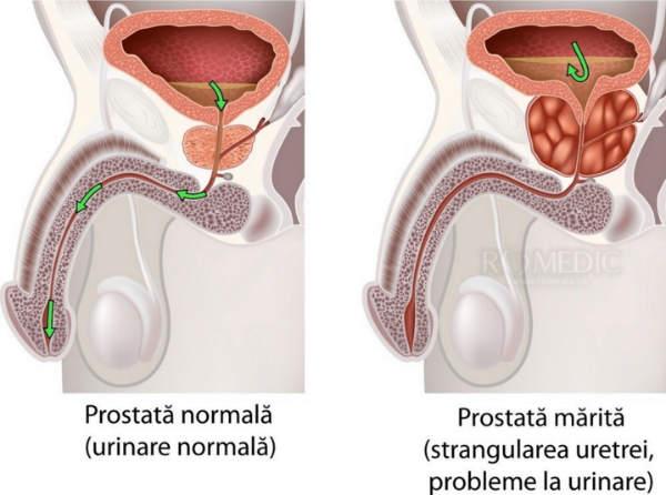 prostata simptome la femei