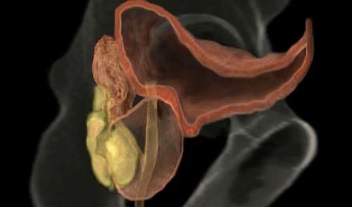 fără erecție matinală din cauza prostatitei